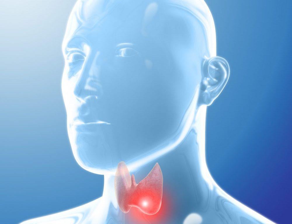 Pacientes con cáncer de Tiroides